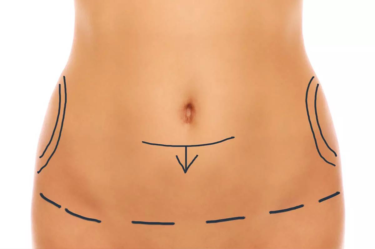 Miniabdominoplastia-e-indicação-para-os-casos-de-menor-flacidez-no-abdômen-1200x797.png