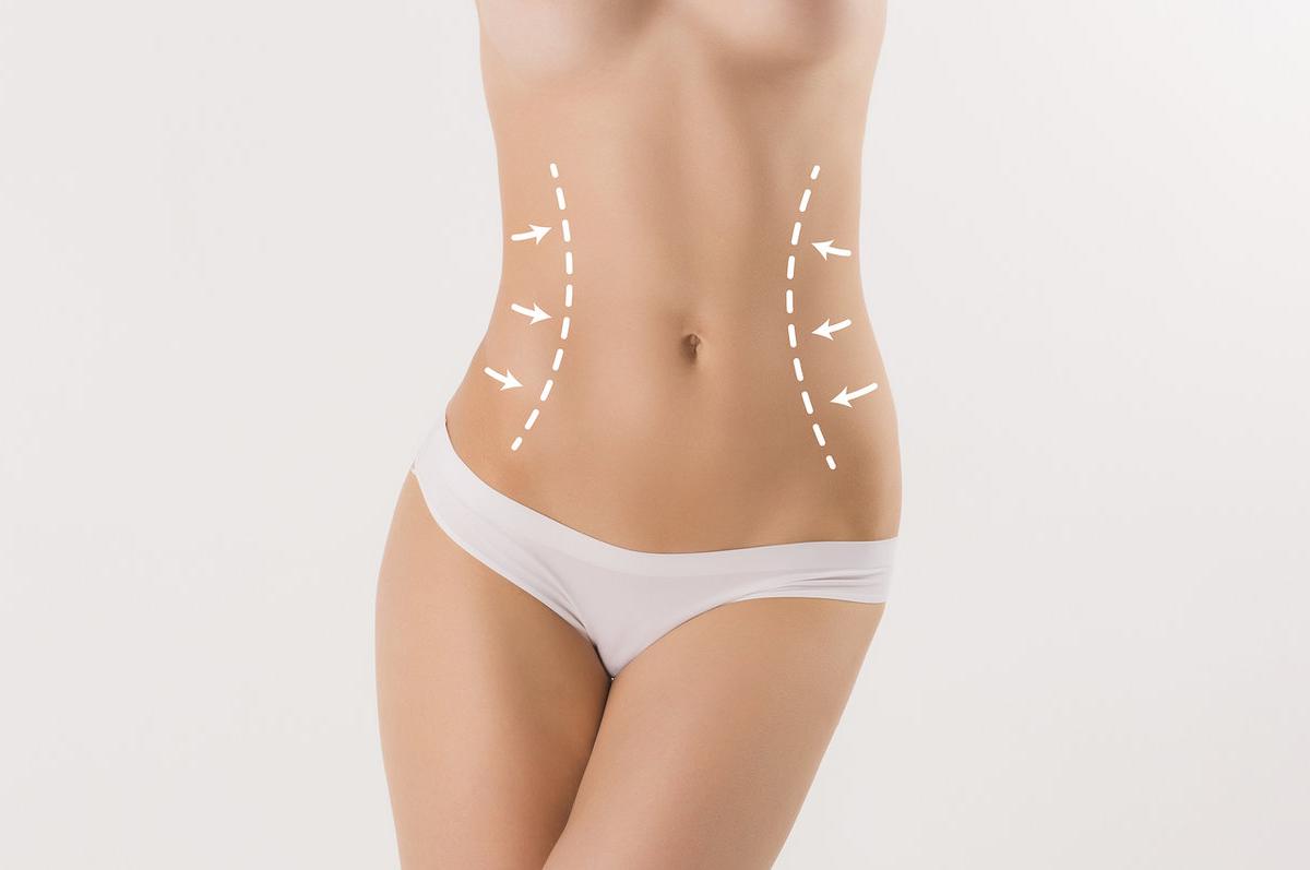 Abdominoplastia-com-Lipoescultura-conheca-a-combinacao-dos-procedimentos-1200x797.png