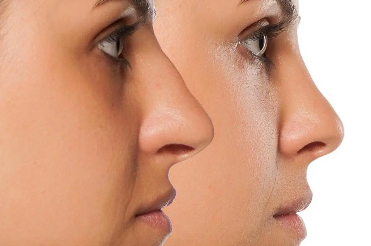 Rinoplastia-Aberta-Esclarecimentos-sobre-a-cirurgia-de-nariz-1200x797.png
