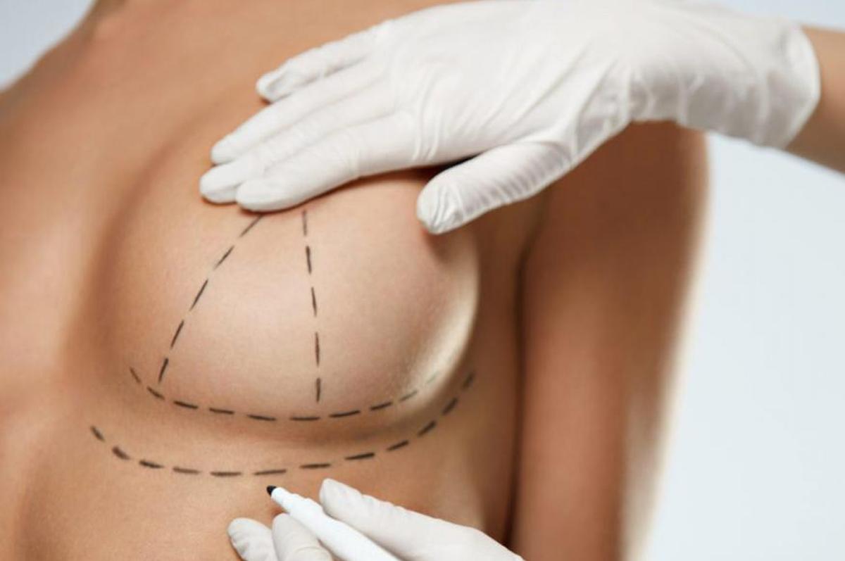 Mastopexia-Cirurgia-plastica-para-correcao-de-mamas-cadas-1200x797.png