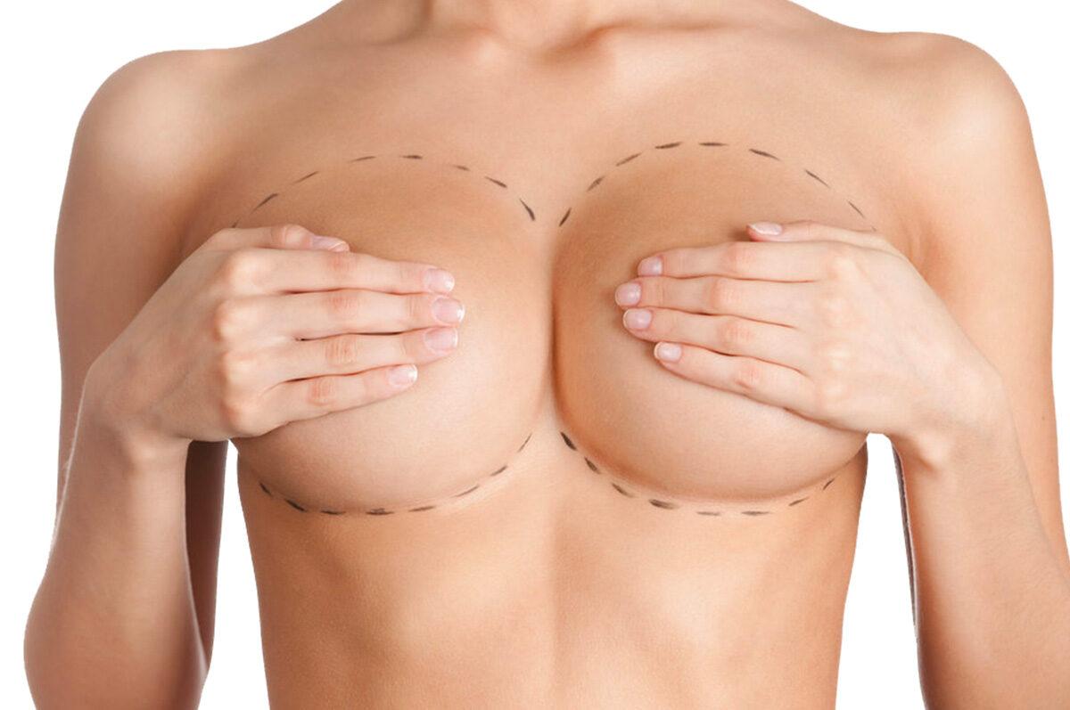 Quanto-tempo-duram-os-implantes-de-silicone-1200x797.jpg