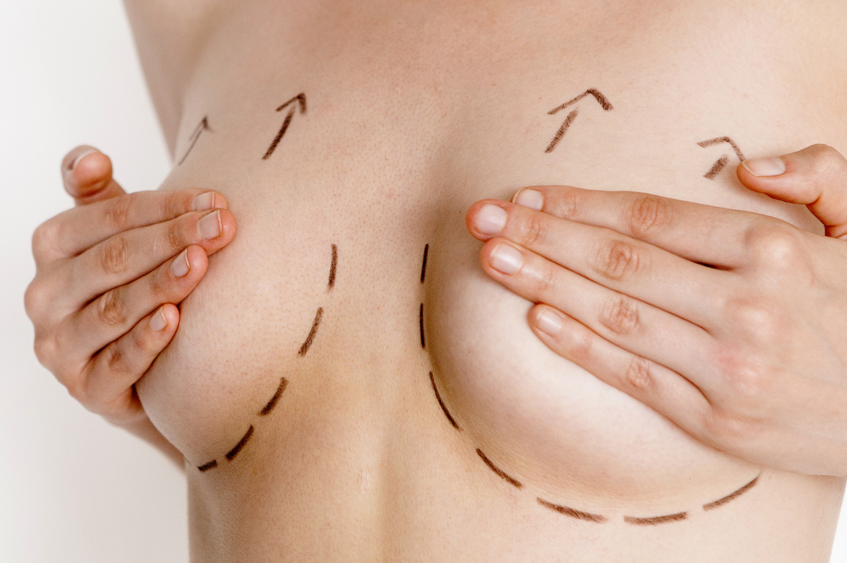 Tenho-que-retirar-pele-e-levantar-as-Mamas-Cirurgia-de-Mastopexia.jpg