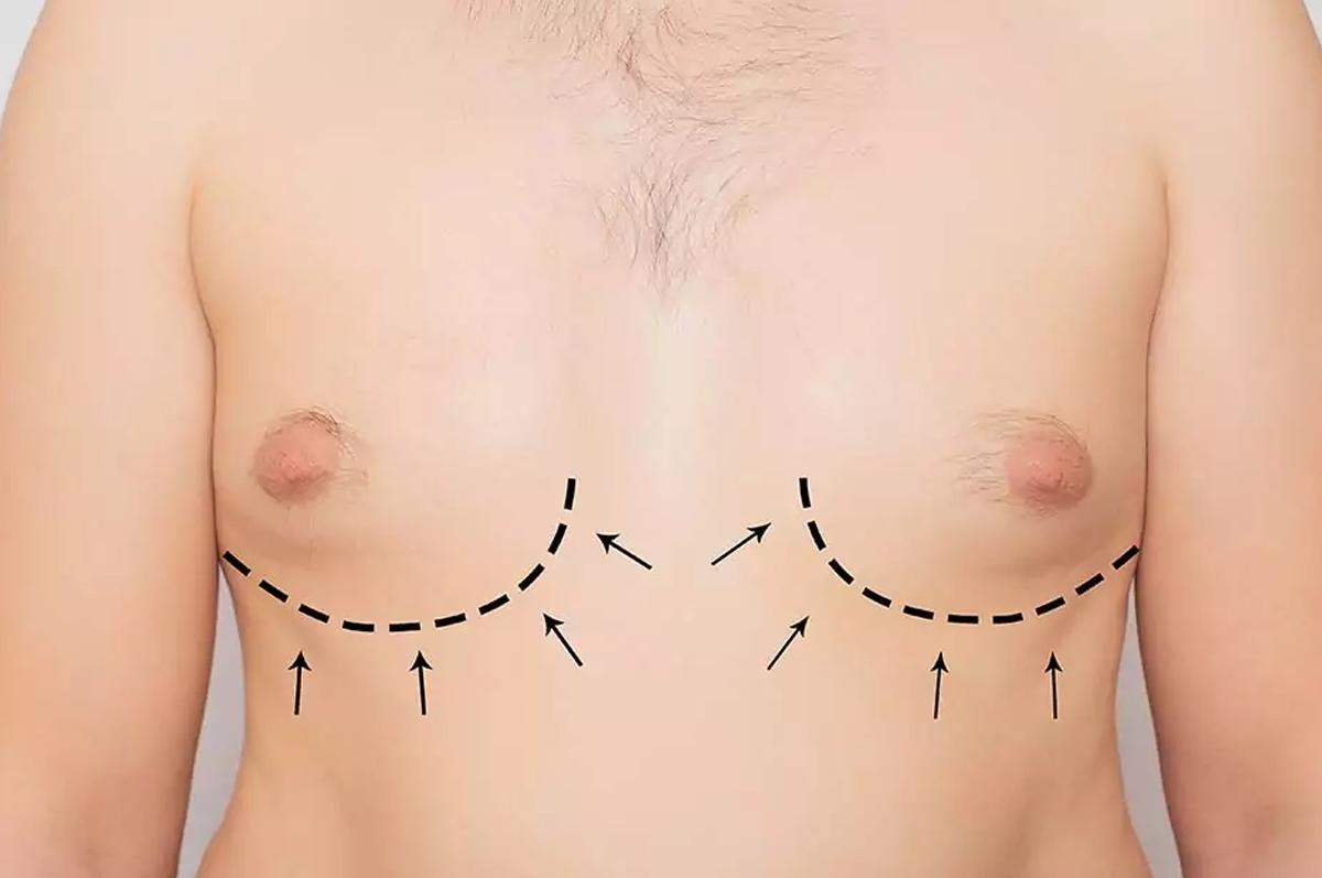 mamoplastia-de-reducao-em-homens.png