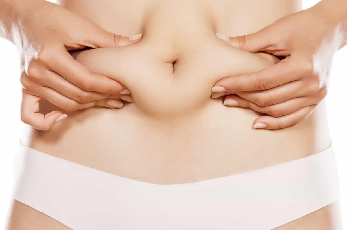 Abdominoplastia-Cirurgia-plastica-do-abdomen.png