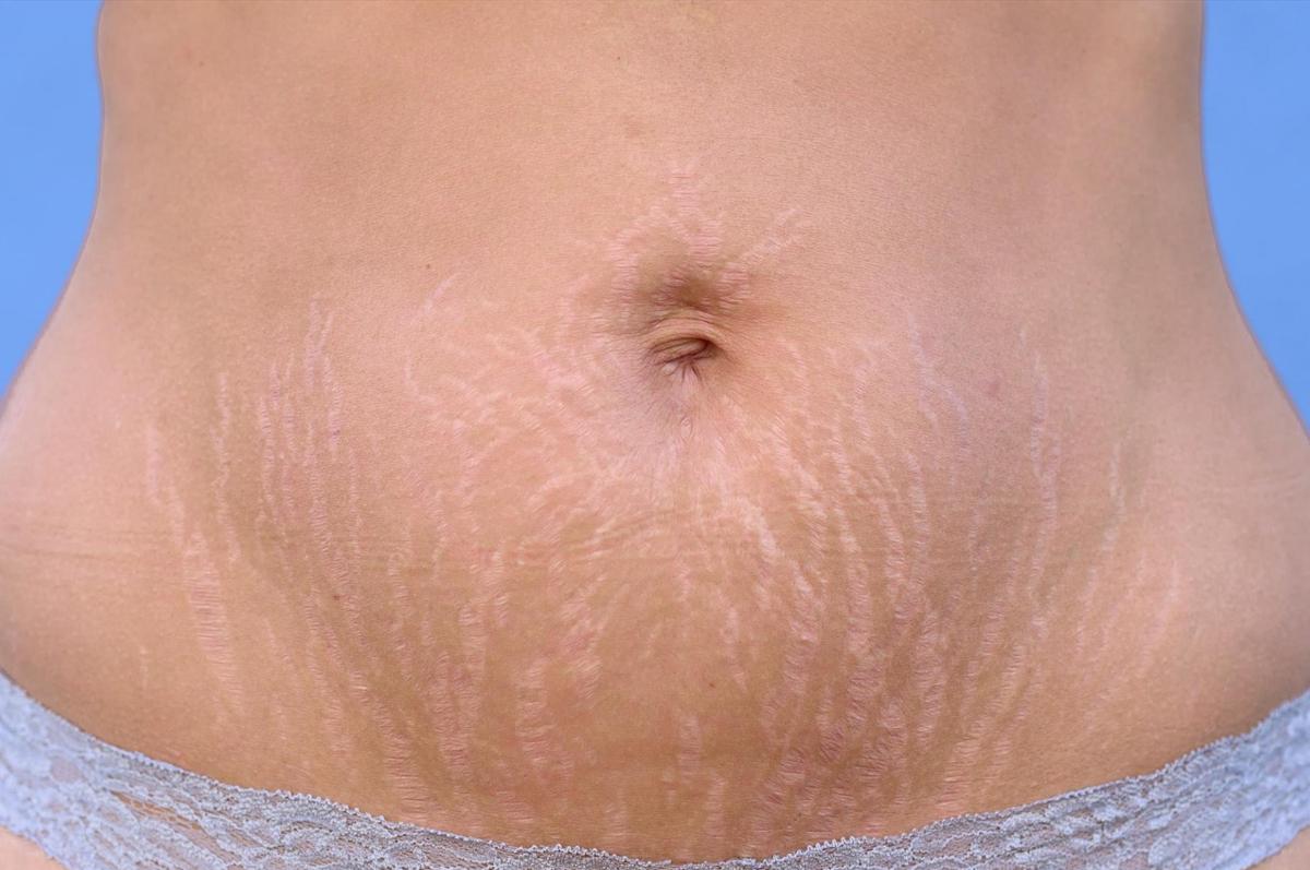 Abdominoplastia-e-estrias.png