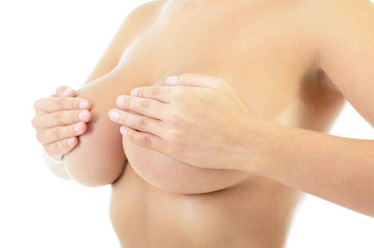 Mastopexia-com-protese-Como-e-feita-a-cirurgia.png