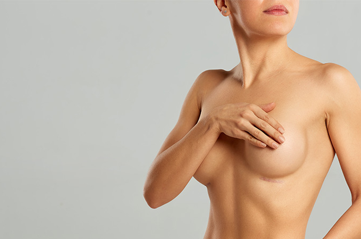 mastopexia-qual-a-idade-ideal-para-realizar-a-cirurgia.png