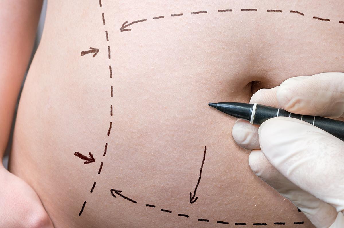 Como-e-feita-a-abdominoplastia.png